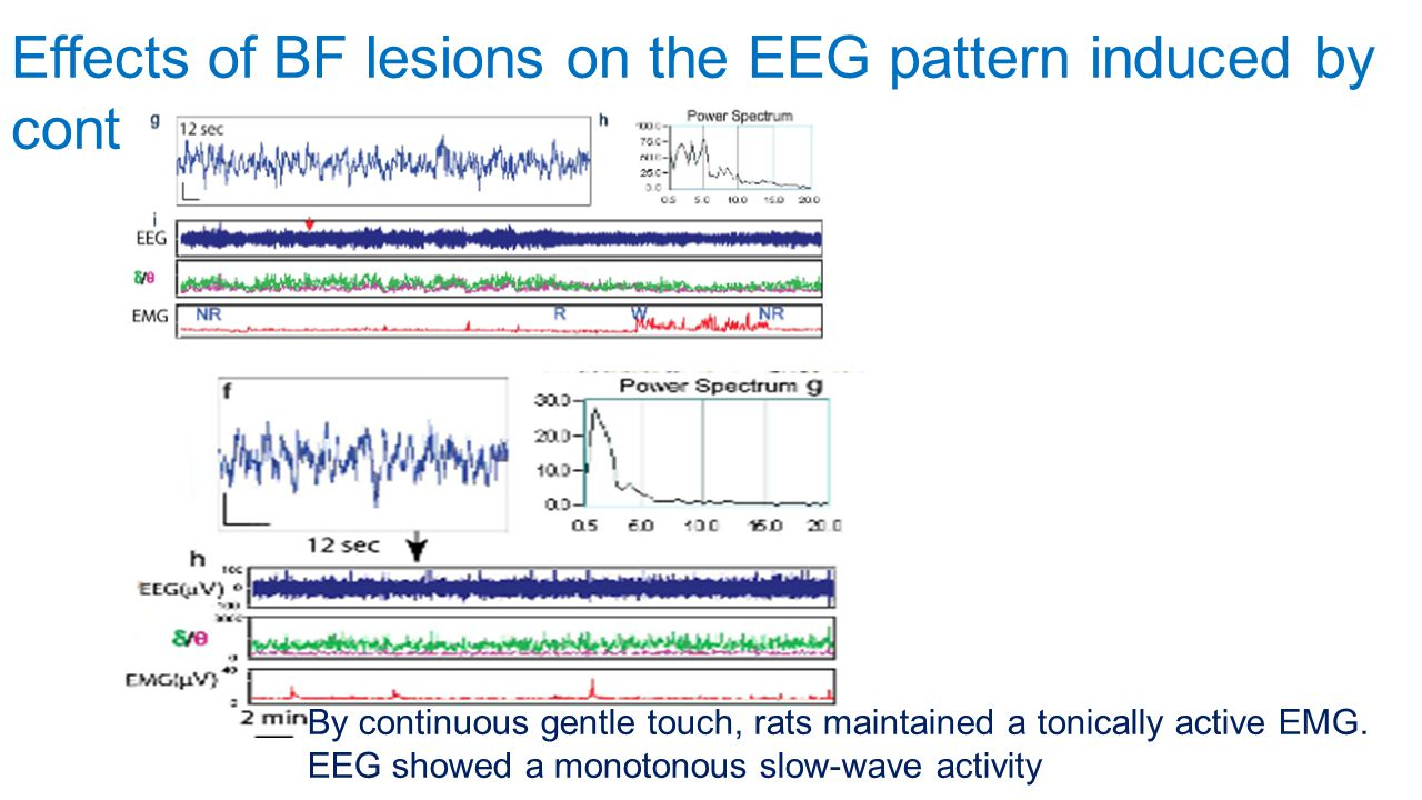 Effects of BF lesions on the EEG pattern induced by continuous stimulation