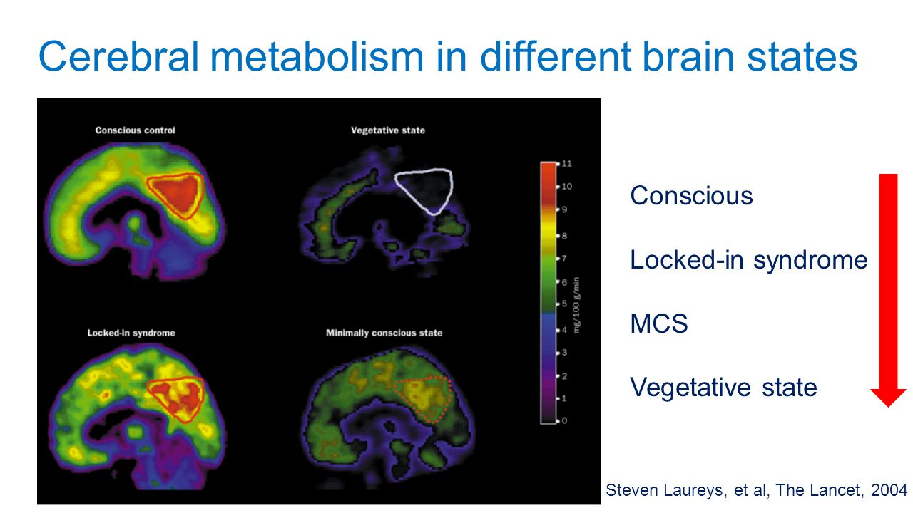 Cerebral metabolism in different brain states