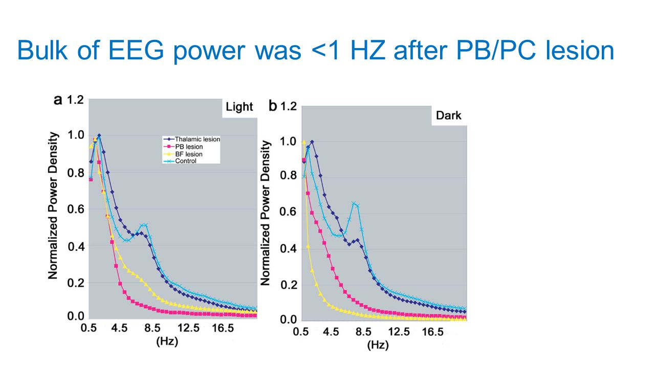 Bulk of EEG power was <1 HZ after PB/PC lesion