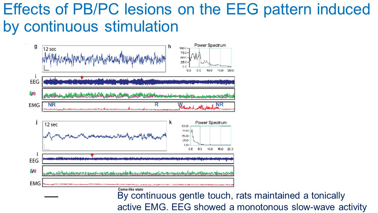 Effects of PB/PC lesions on the EEG pattern induced by continuous stimulation