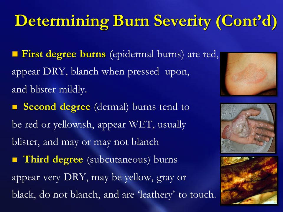 Determining Burn Severity (Cont'd)