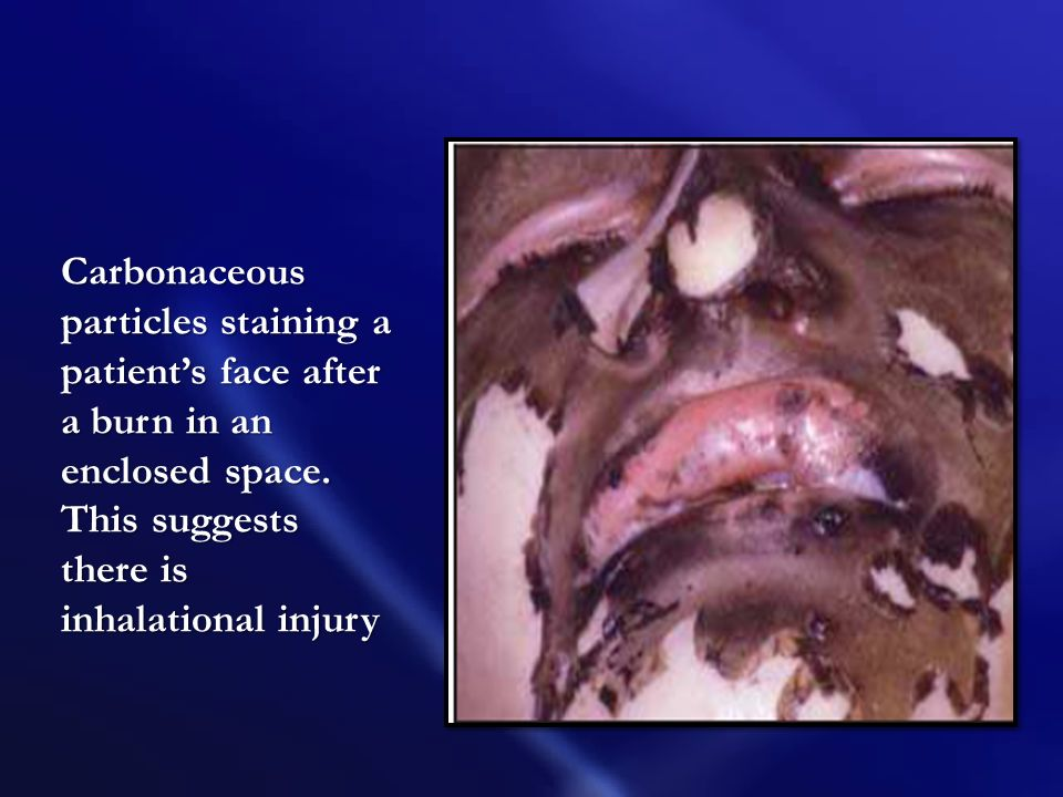 Carbonaceous particles staining a patient's face after a burn in an enclosed space.