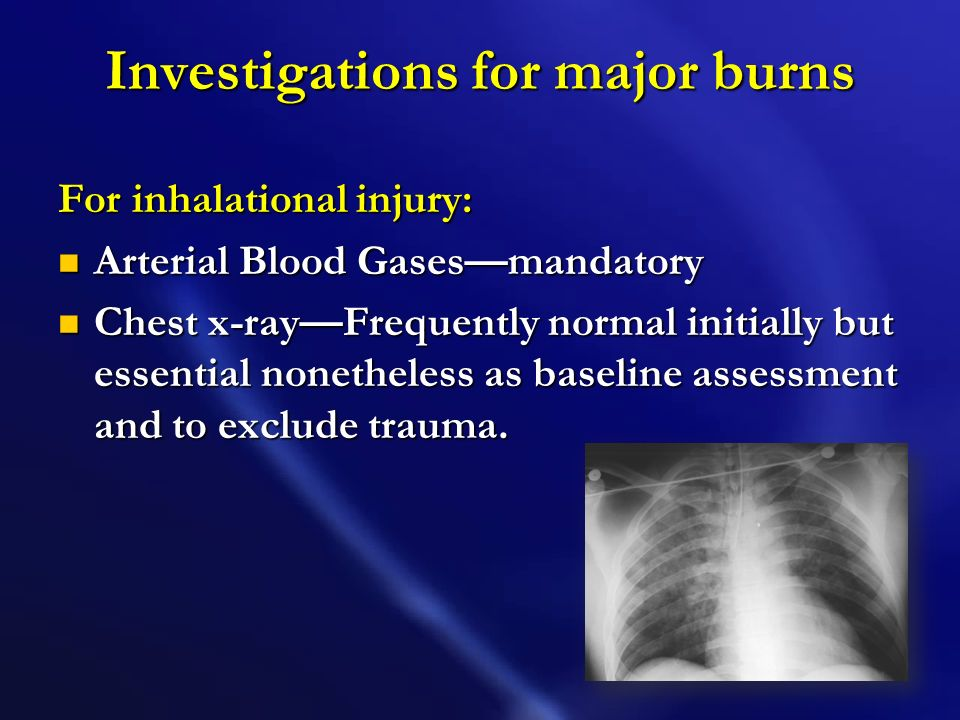 Investigations for major burns