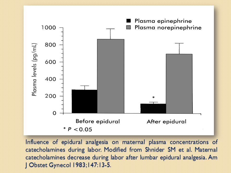 Influence of epidural analgesia on maternal plasma concentrations of catecholamines during labor.