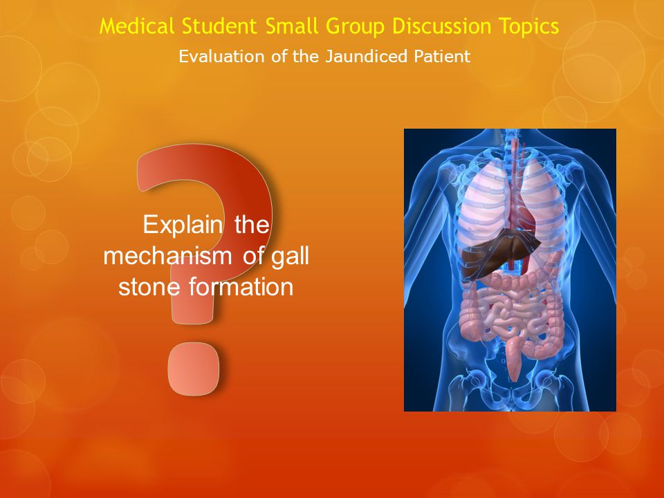 Explain the mechanism of gall stone formation