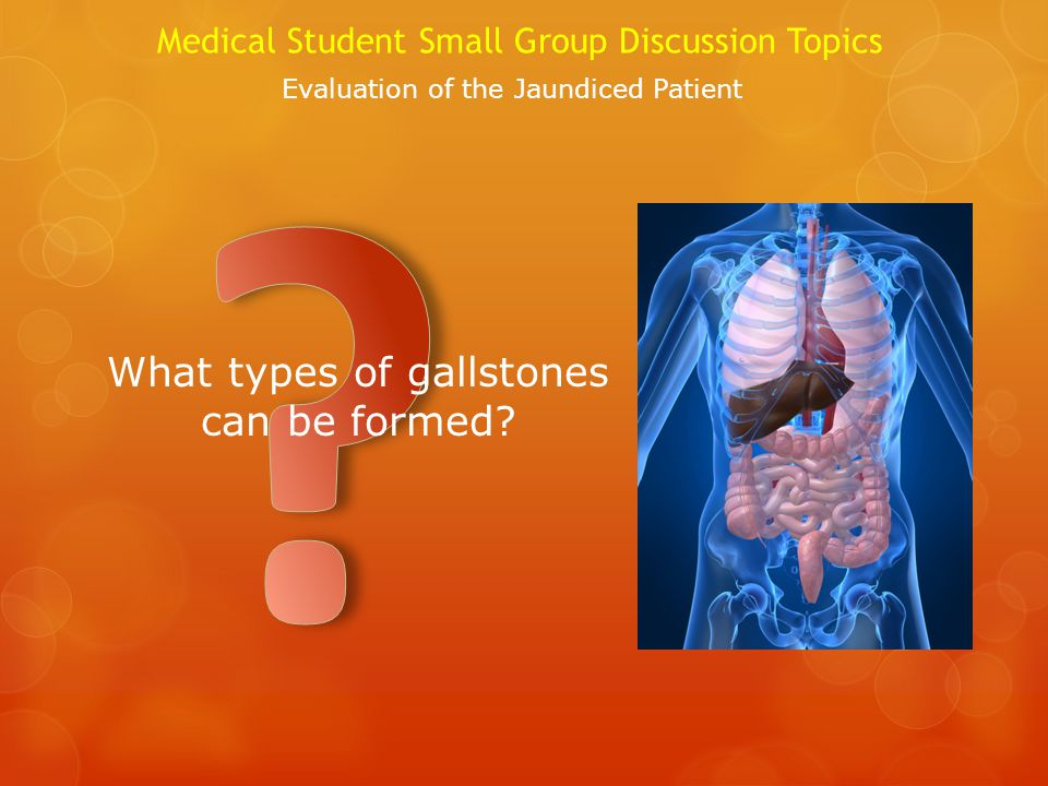 What types of gallstones can be formed