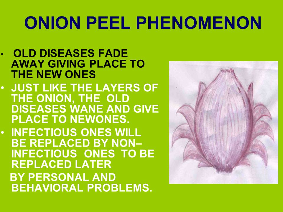 ONION PEEL PHENOMENON OLD DISEASES FADE AWAY GIVING PLACE TO THE NEW ONES.