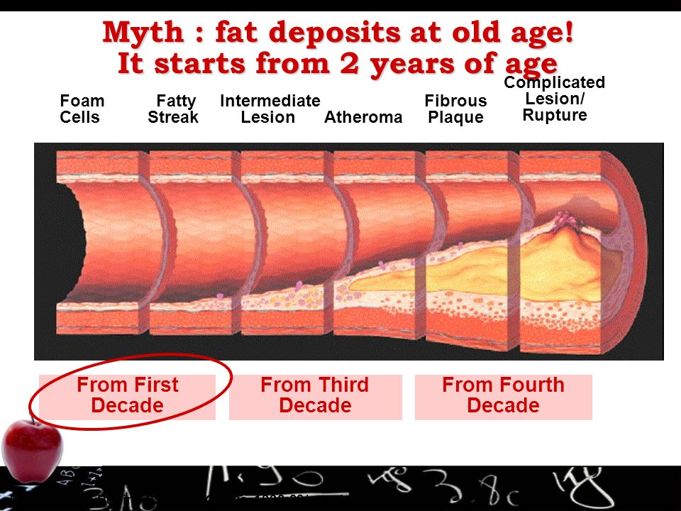 Myth : fat deposits at old age! It starts from 2 years of age