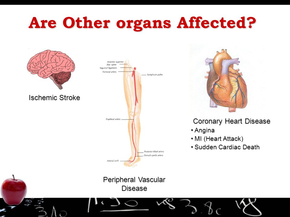 Are Other organs Affected