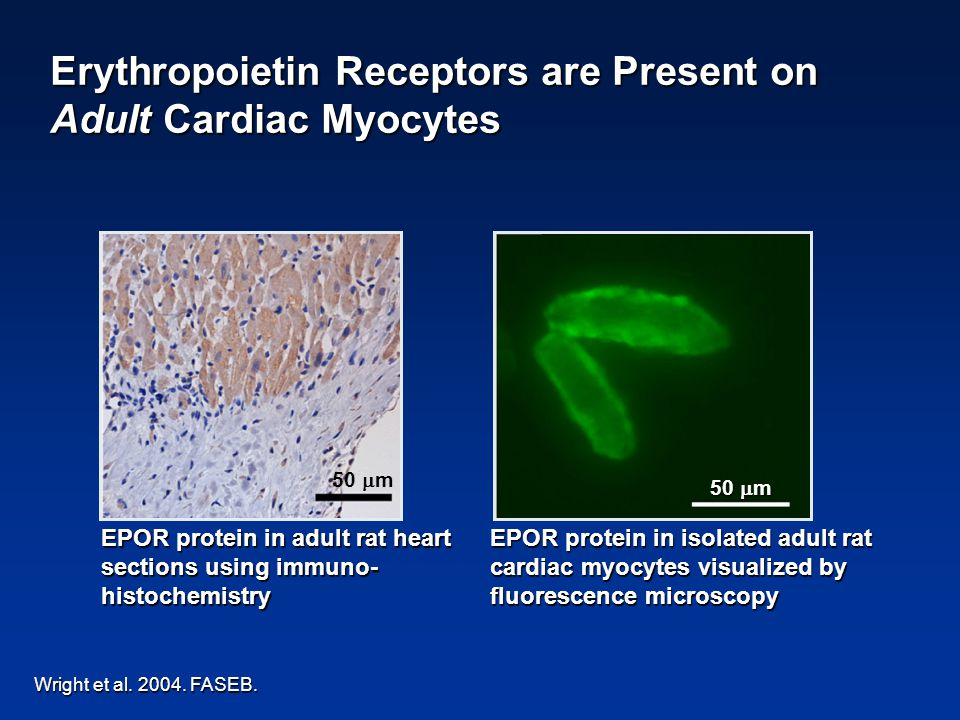 Erythropoietin Receptors are Present on Adult Cardiac Myocytes