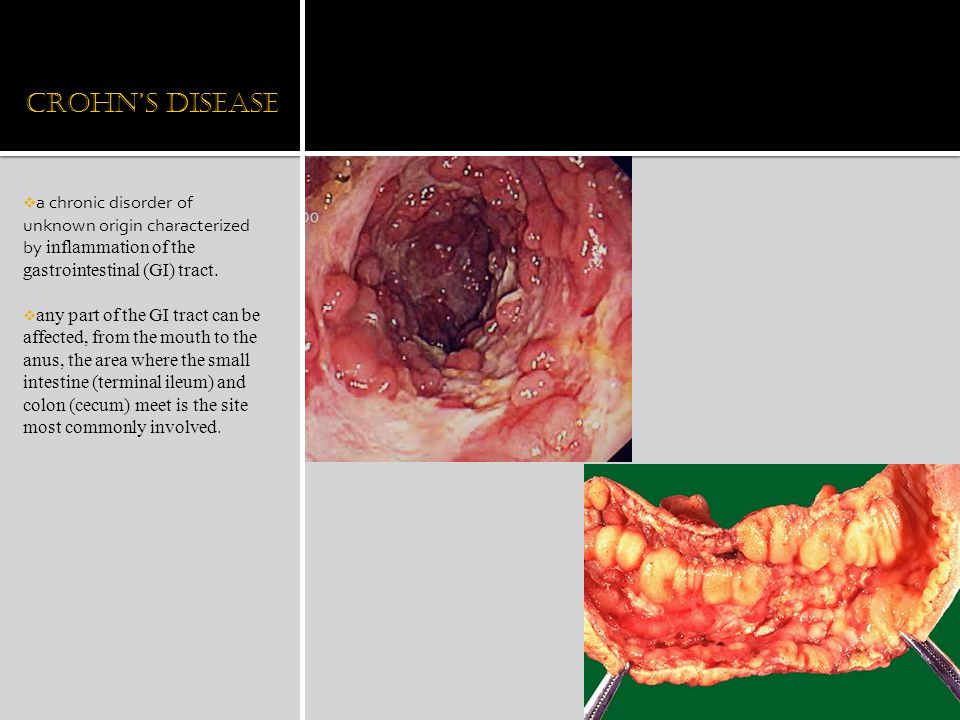 Crohn's Disease a chronic disorder of unknown origin characterized by inflammation of the gastrointestinal (GI) tract.
