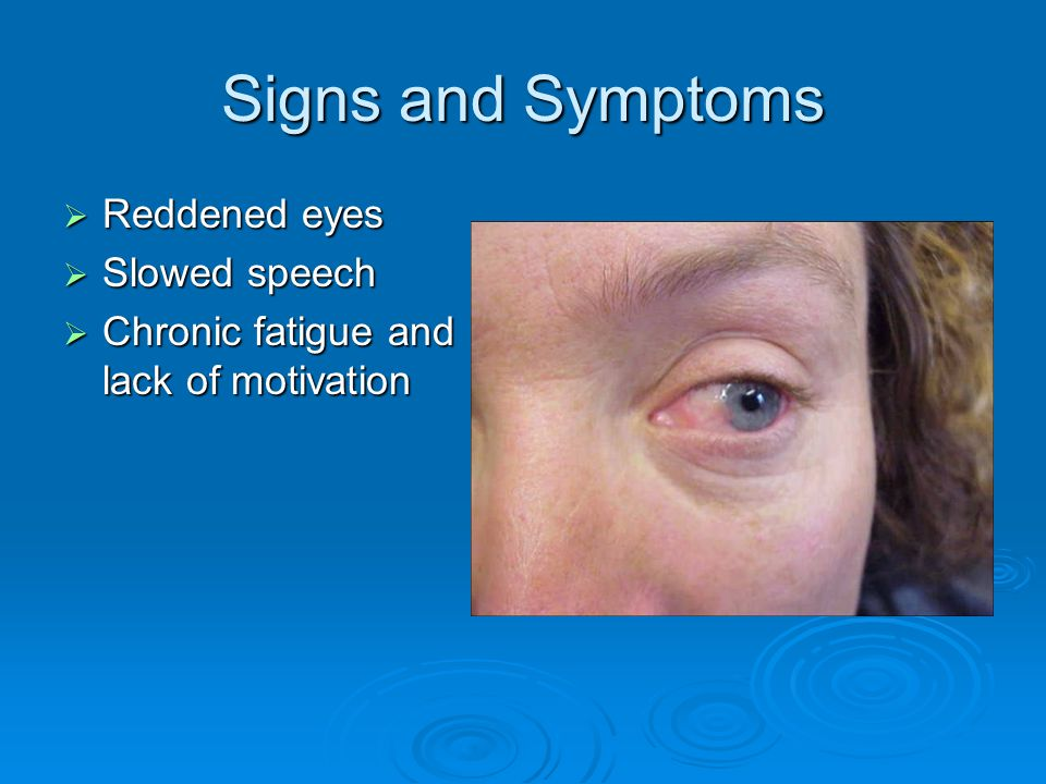 Signs and Symptoms Reddened eyes Slowed speech