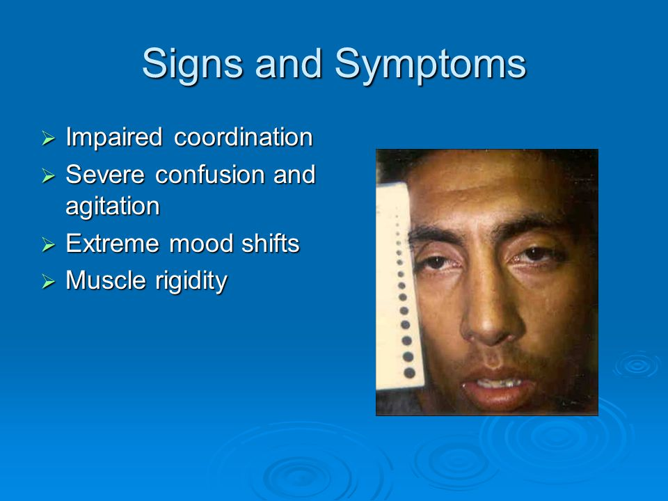 Signs and Symptoms Impaired coordination