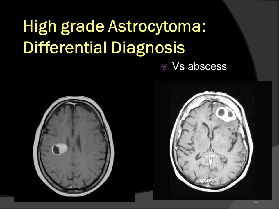High grade Astrocytoma: Differential Diagnosis