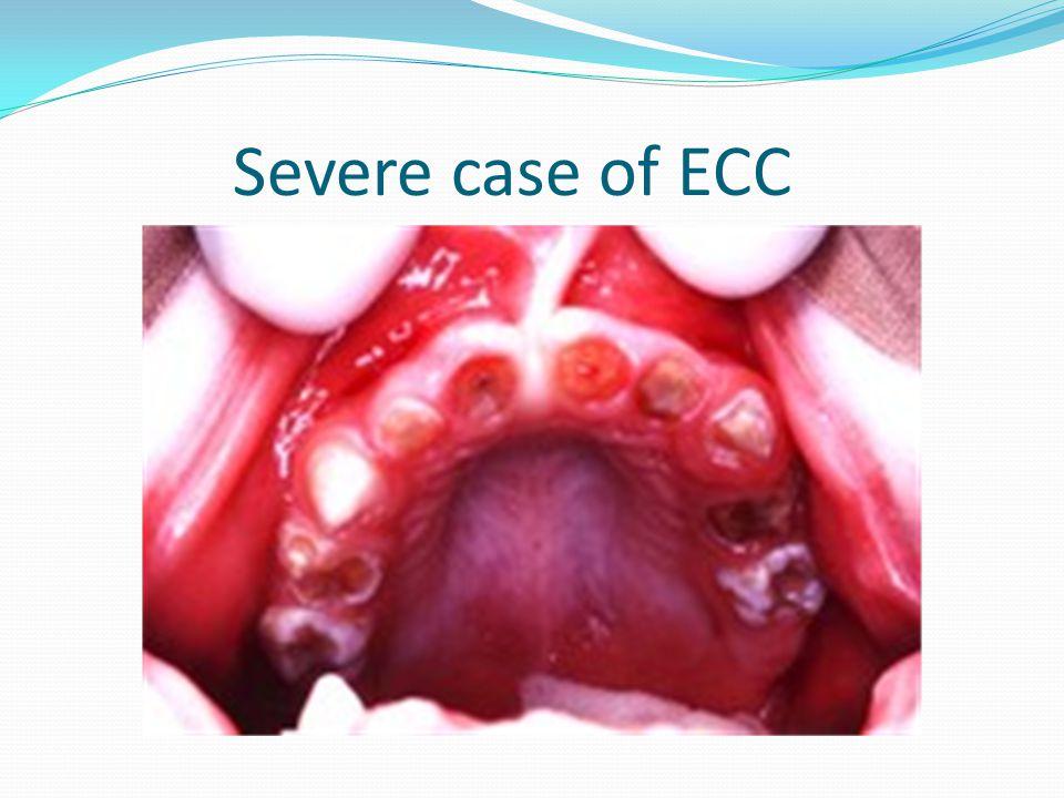 Severe case of ECC