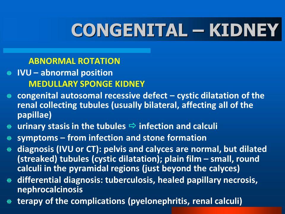 CONGENITAL – KIDNEY IVU – abnormal position MEDULLARY SPONGE KIDNEY