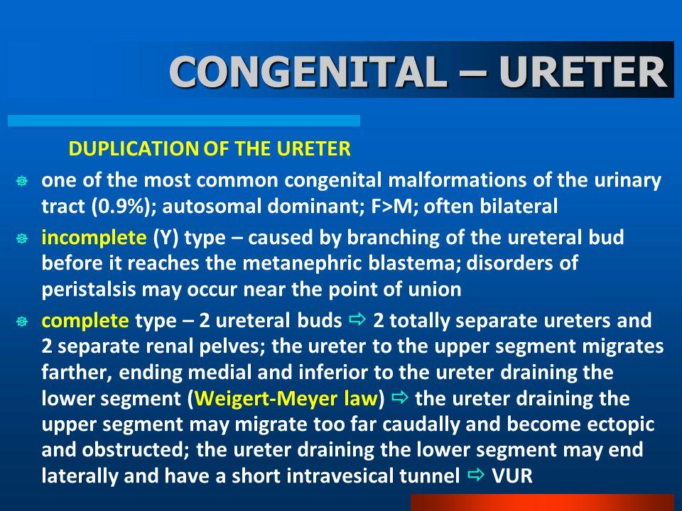 CONGENITAL – URETER DUPLICATION OF THE URETER