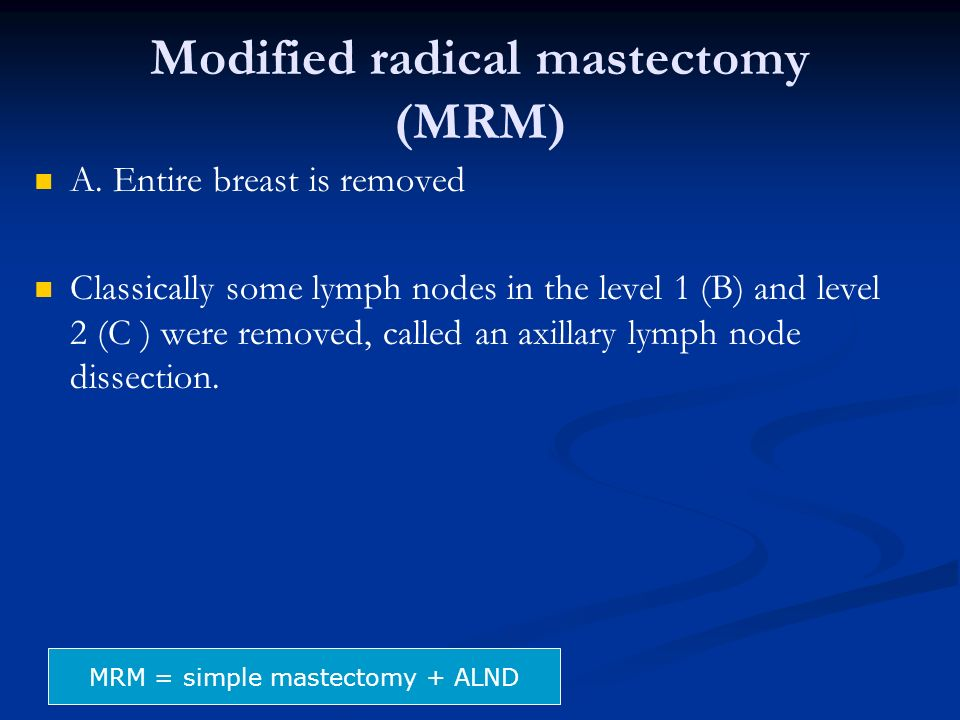 Modified radical mastectomy (MRM)