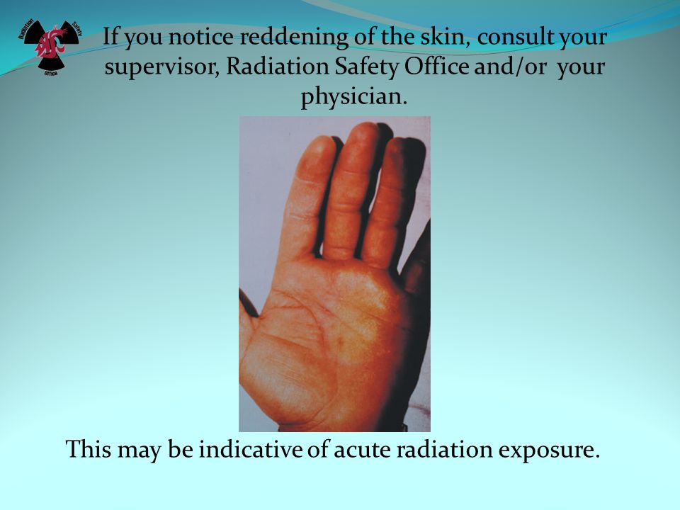 If you notice reddening of the skin, consult your supervisor, Radiation Safety Office and/or your physician.