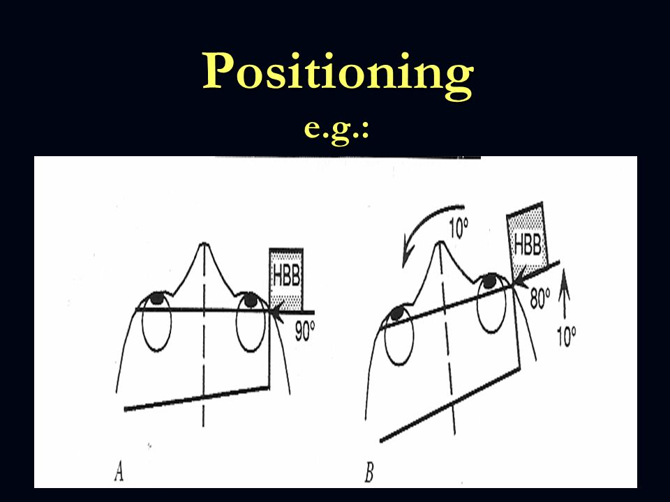 Positioning e.g.: If the head of the patient is rotated 10 degree you have to turn the gantry in the same direction for 10 degree as well.