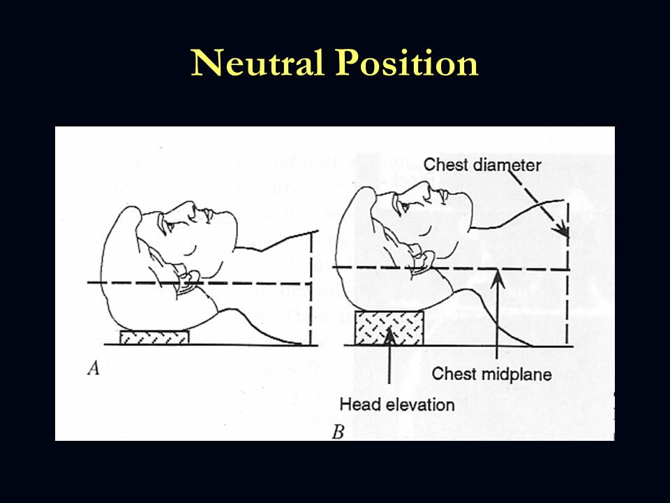 Neutral Position Head elevation required to produce a neutral position varies from patient to patient, depends on the patient chest size,