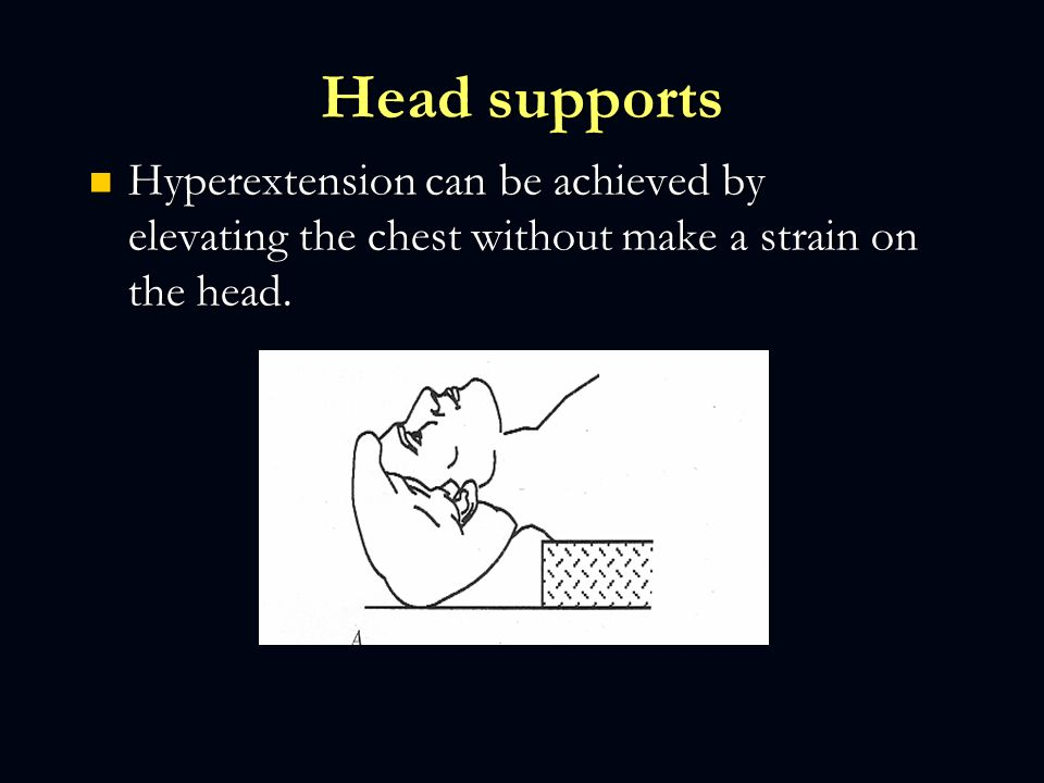 Head supports Hyperextension can be achieved by elevating the chest without make a strain on the head.