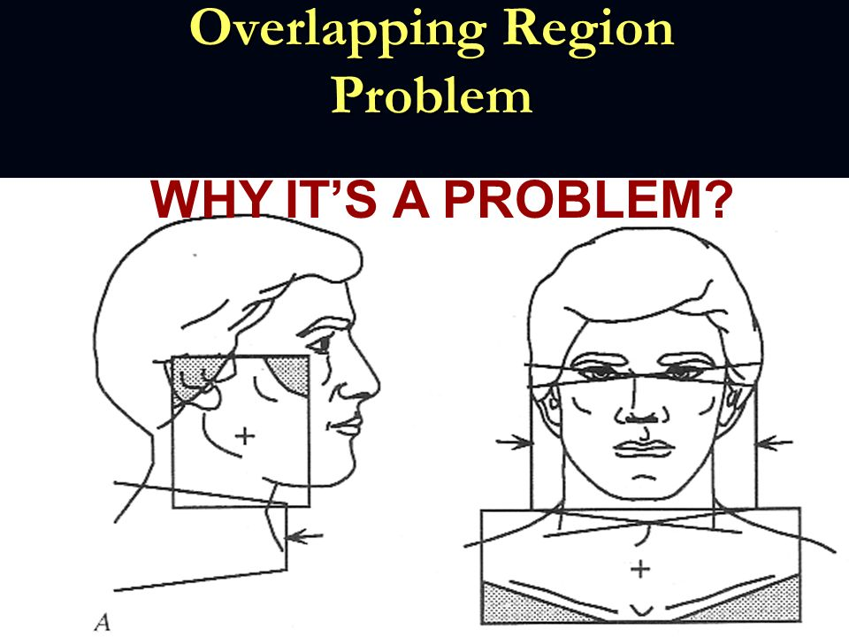 Overlapping Region Problem