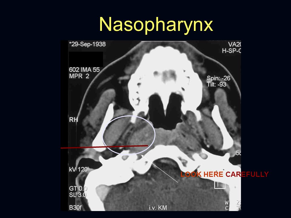 Nasopharynx LOOK HERE CAREFULLY