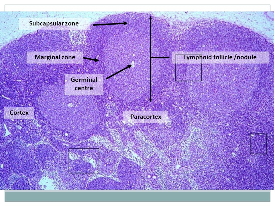 Lymphoid follicle /nodule