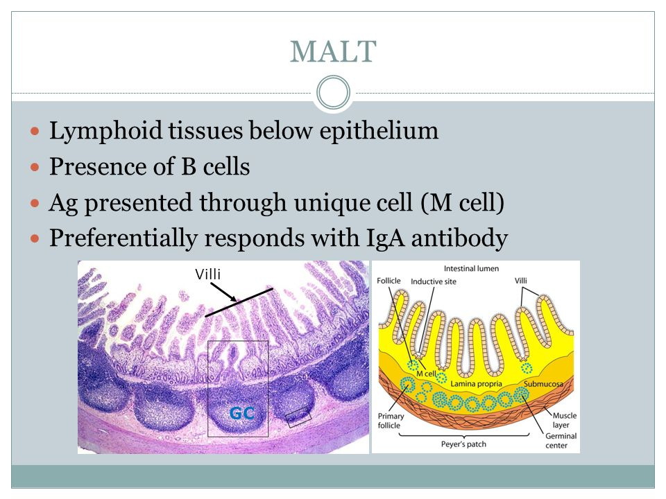 MALT Lymphoid tissues below epithelium Presence of B cells