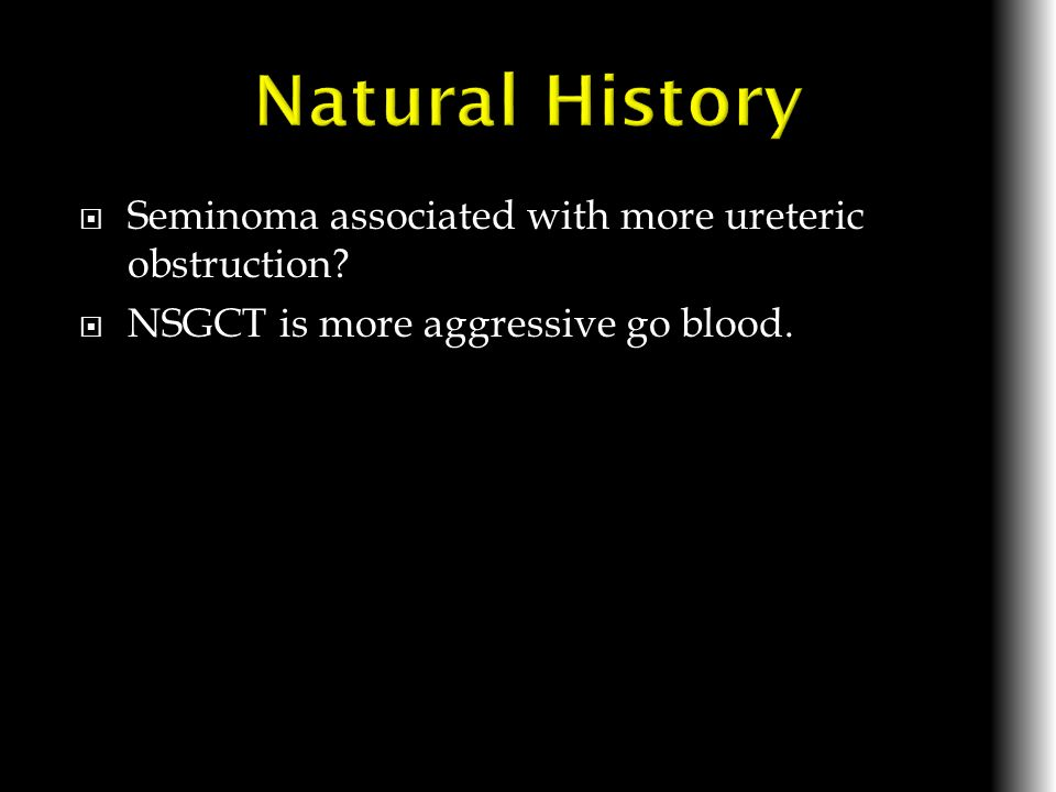 Natural History Seminoma associated with more ureteric obstruction