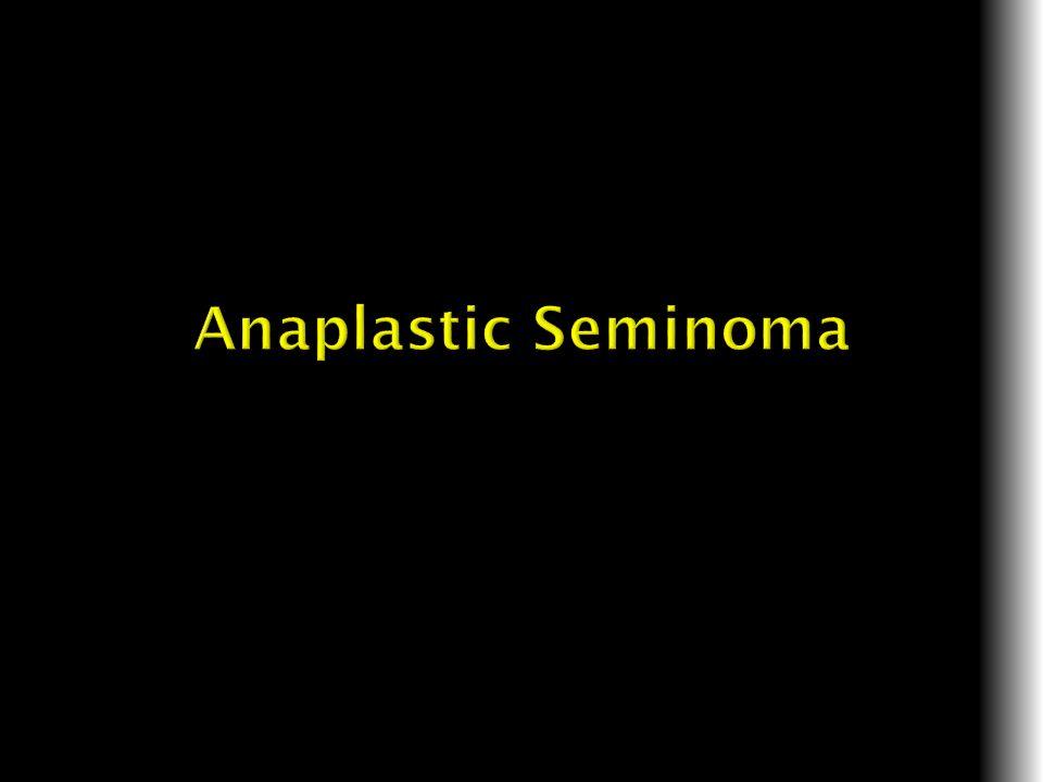 Anaplastic Seminoma