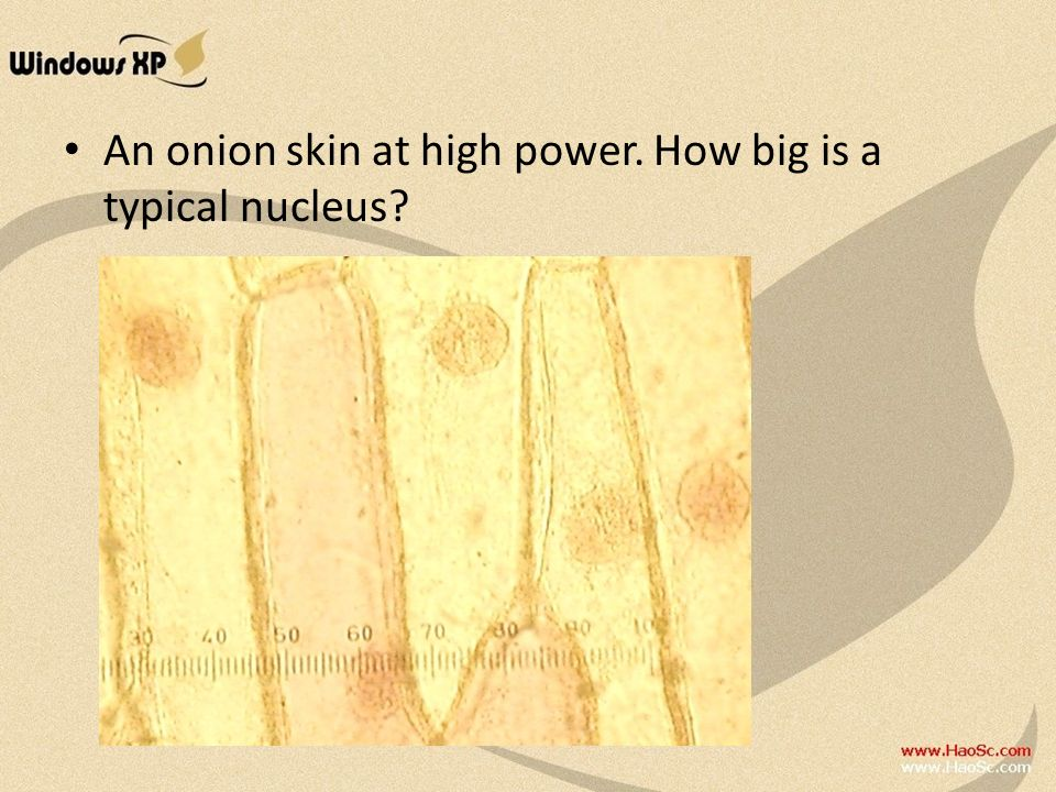 An onion skin at high power. How big is a typical nucleus