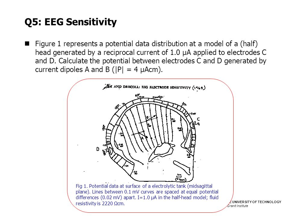 Q5: EEG Sensitivity