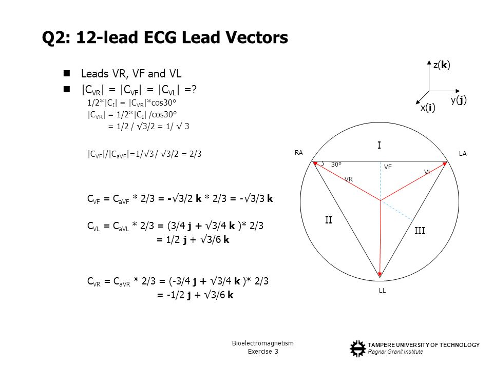 Q2: 12-lead ECG Lead Vectors