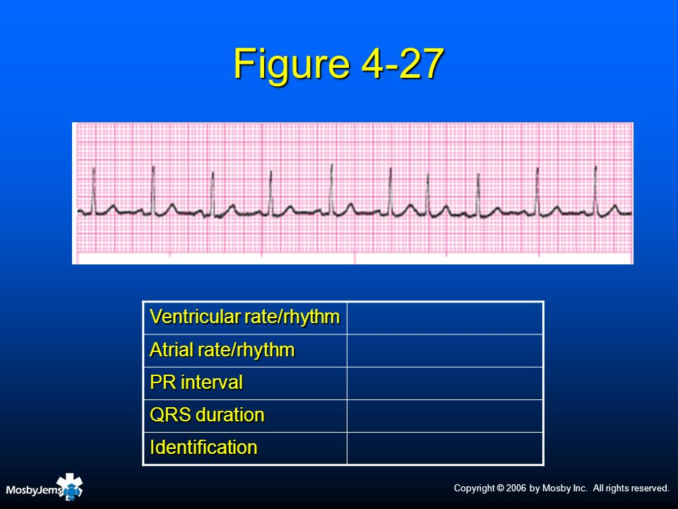 Figure 4-27 Ventricular rate/rhythm Atrial rate/rhythm PR interval
