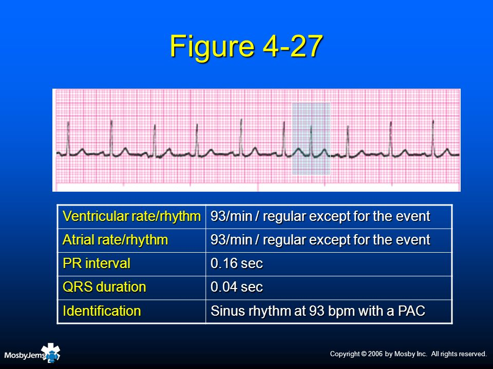 Figure 4-27 Ventricular rate/rhythm