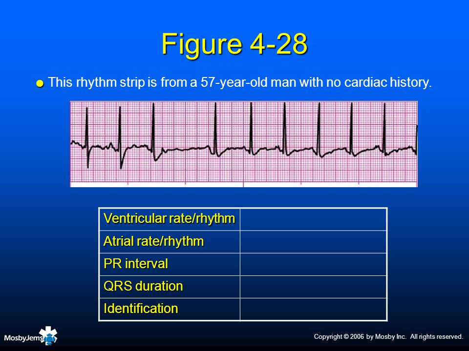 This rhythm strip is from a 57-year-old man with no cardiac history.