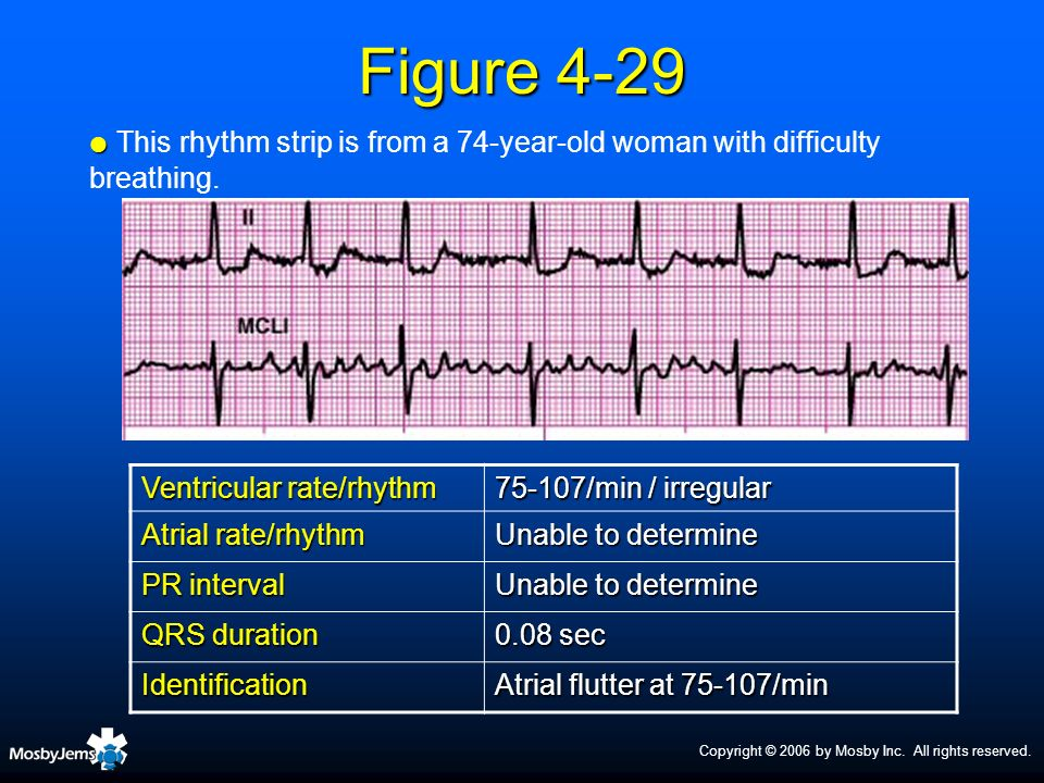 Figure 4-29This rhythm strip is from a 74-year-old woman with difficulty breathing. Ventricular rate/rhythm.