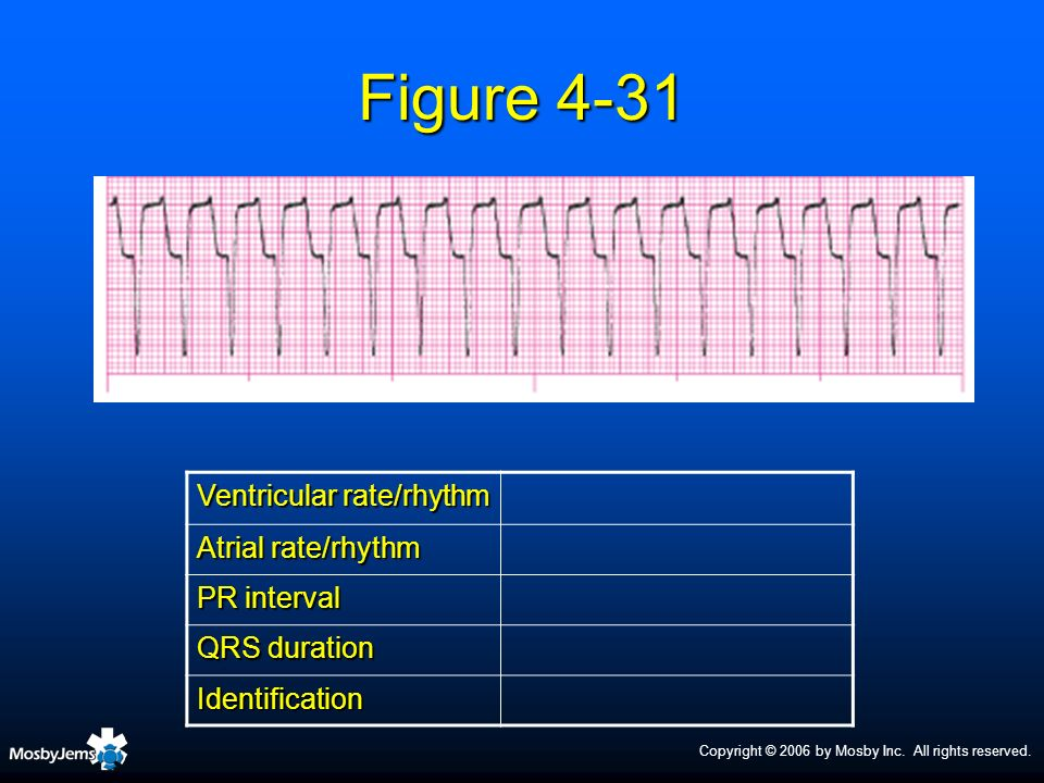 Figure 4-31 Ventricular rate/rhythm Atrial rate/rhythm PR interval