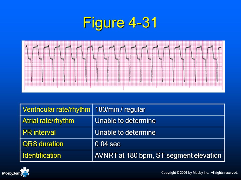 Figure 4-31 Ventricular rate/rhythm 180/min / regular