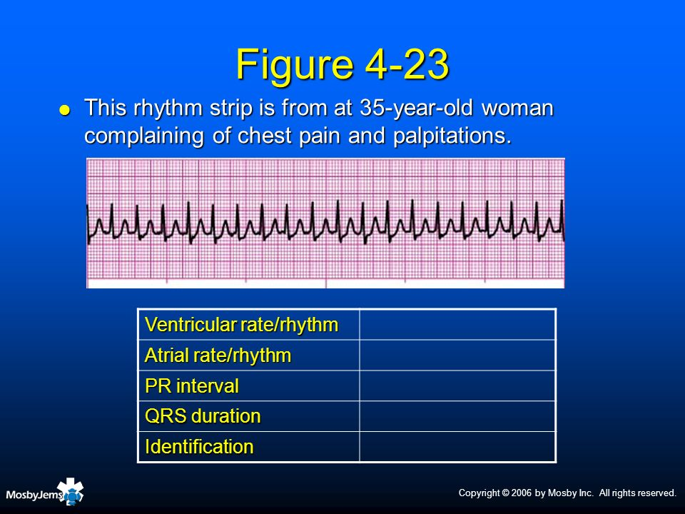 Figure 4-23This rhythm strip is from at 35-year-old woman complaining of chest pain and palpitations.