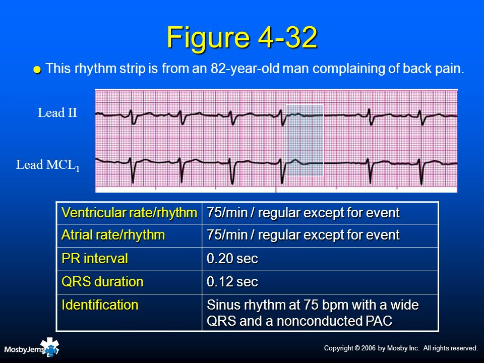 This rhythm strip is from an 82-year-old man complaining of back pain.