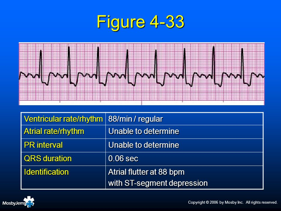 Figure 4-33 Ventricular rate/rhythm 88/min / regular