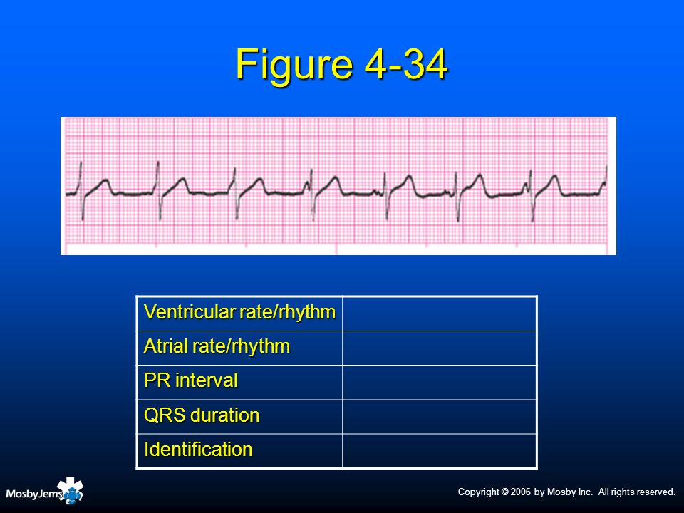 Figure 4-34 Ventricular rate/rhythm Atrial rate/rhythm PR interval