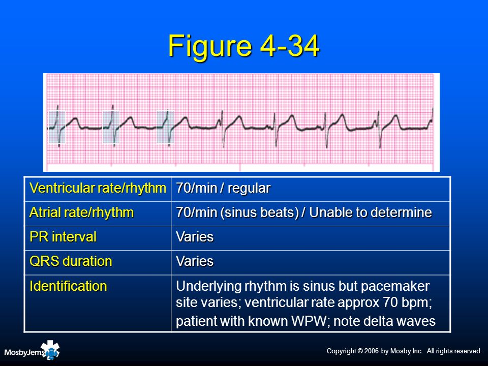 Figure 4-34 Ventricular rate/rhythm 70/min / regular