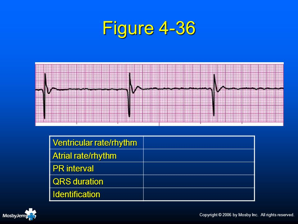 Figure 4-36 Ventricular rate/rhythm Atrial rate/rhythm PR interval