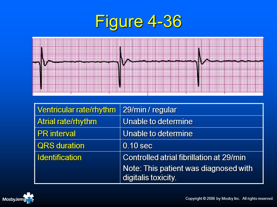 Figure 4-36 Ventricular rate/rhythm 29/min / regular