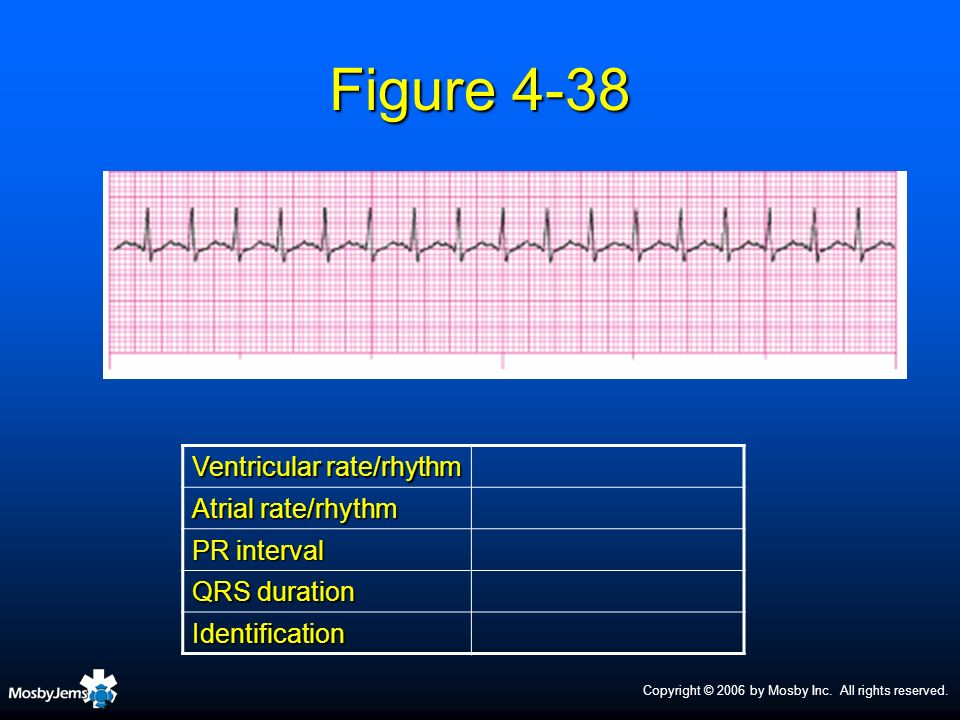 Figure 4-38 Ventricular rate/rhythm Atrial rate/rhythm PR interval