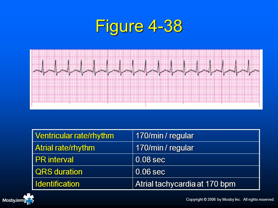 Figure 4-38 Ventricular rate/rhythm 170/min / regular